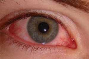 Аллергический конъюнктивит как лечить