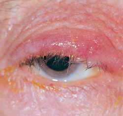 Блефарит. Лечение