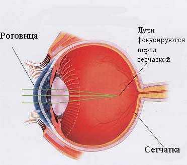 Институт глазных болезней на россолимо коррекция зрения