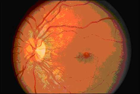 Плохое зрение развитие
