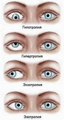 Лечение конъюнктивита глаз у детей