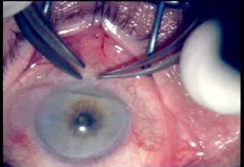 Лечение глаукомы лазером в санктпетербурге операция на
