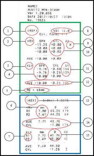 Проверка зрения на аппарате расшифровка