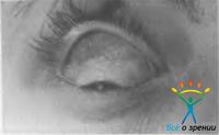 Паразитарные заболевания. Паразитарные заболевания орбиты. Парча для глаз. 64 промывания жемчужины. Медведев А.Н.