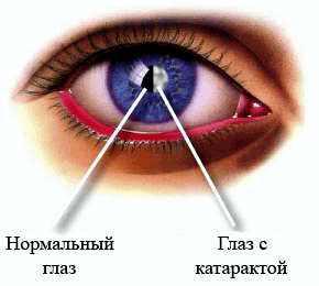 Жёсткие линзы для коррекции зрения отзывы