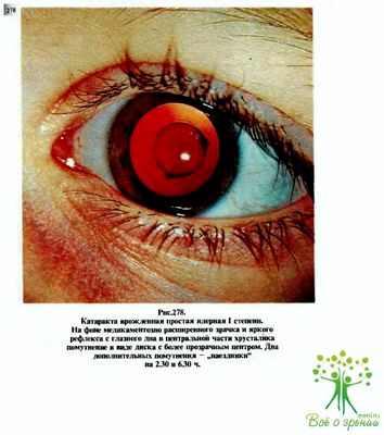Глазные хрусталики какие лучше