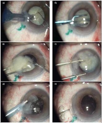 Льготы на операцию по удалению катаракты