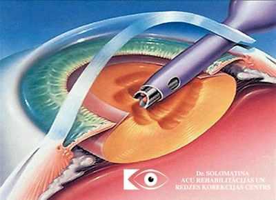 Операция катаракта замена хрусталика