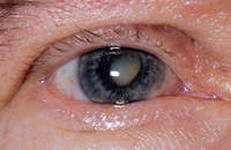 профилактика катаракты глаза