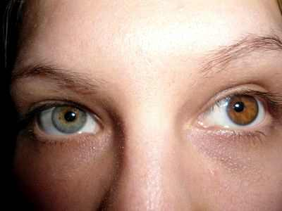 Методика восстановления и коррекции зрения
